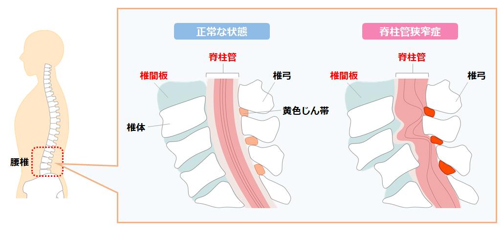 腰痛メカニズム
